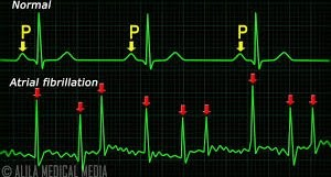 http://www.prontocare.co/wp-content/uploads/2018/05/What-is-Atrial-Fibrillation.jpg
